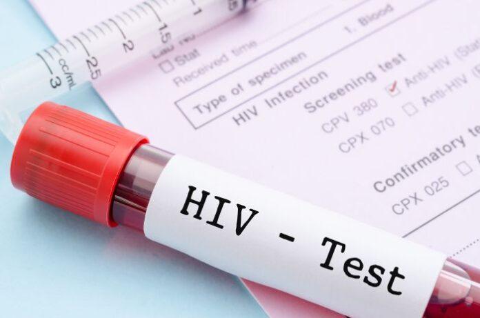 Testy na HIV - probówka z próbką krwi.